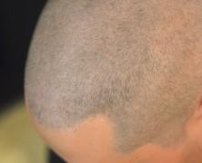 Tricopigmentazione effetto rasato: un'alternativa al trapianto di capelli.
